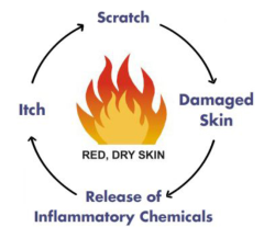 Itch Scratch Diagram Courtesy of the National Eczema Association