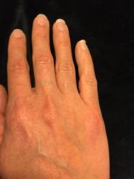 Nummular Eczema on my hand